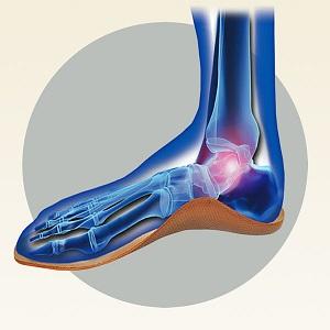 Анатомия на стъпалото върху ортопедична стелка