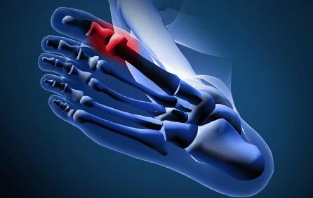 Буниони и болки в кокалчетата на стъпалото