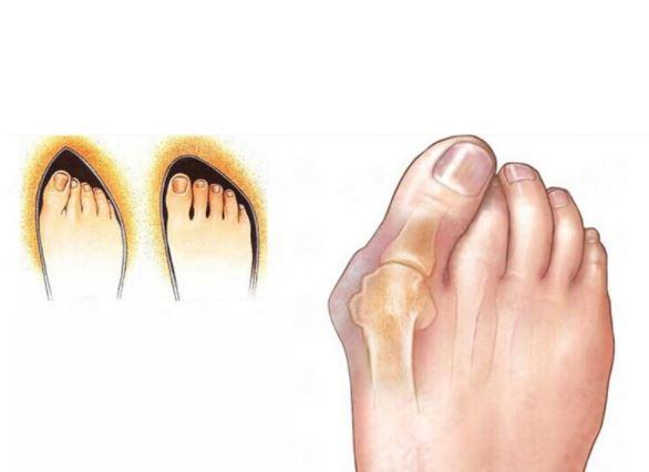 Причина за бунионите са тесните обувки