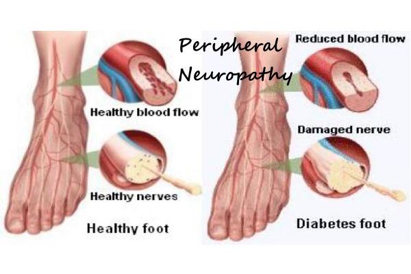 Периферна диабетна невропатия долни крайници