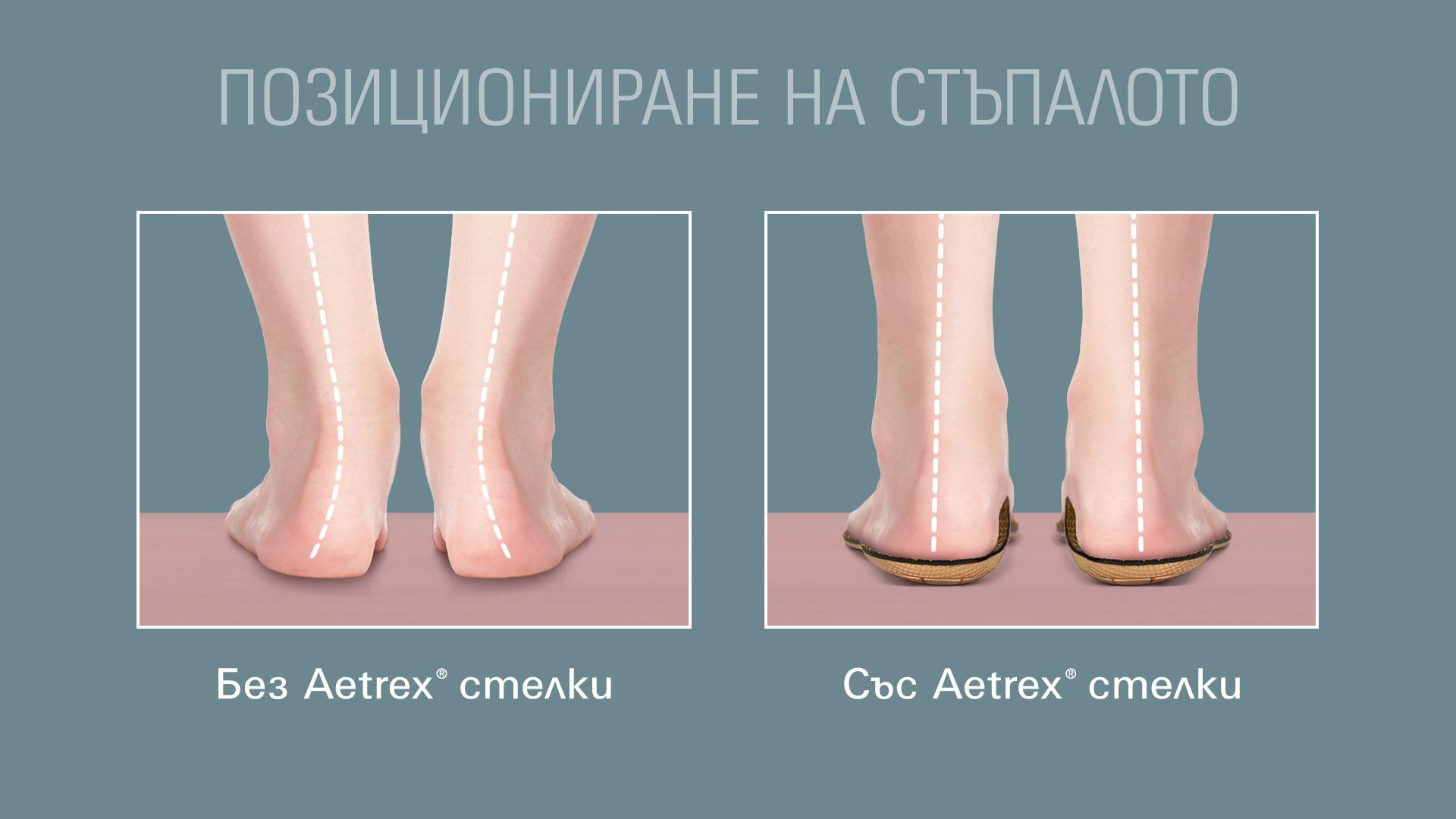 Позициониране на стъпалото със и без ортопедични стелки Aetrex