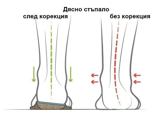 Ортопедична стелка със супинаторен клин